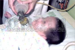 醫療情形─嬰兒抽痰護理